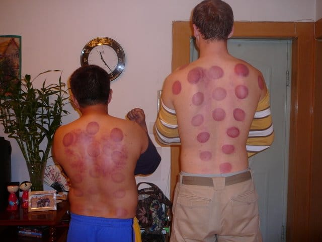 Hickey marks left from Chinese suction cup therapy, known as Chinese cupping;