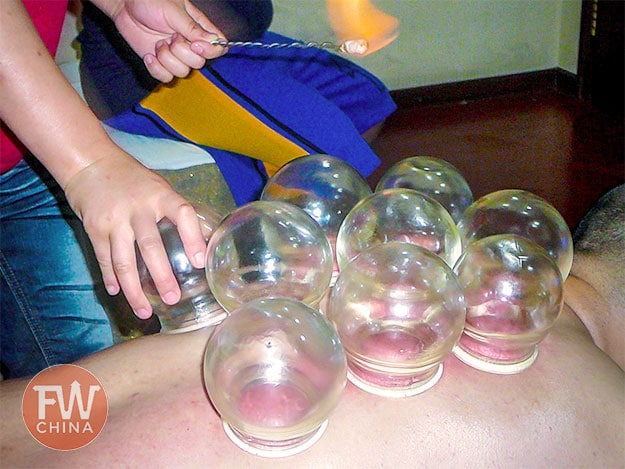 Chinese cupping, known as 拔罐 or Báguàn